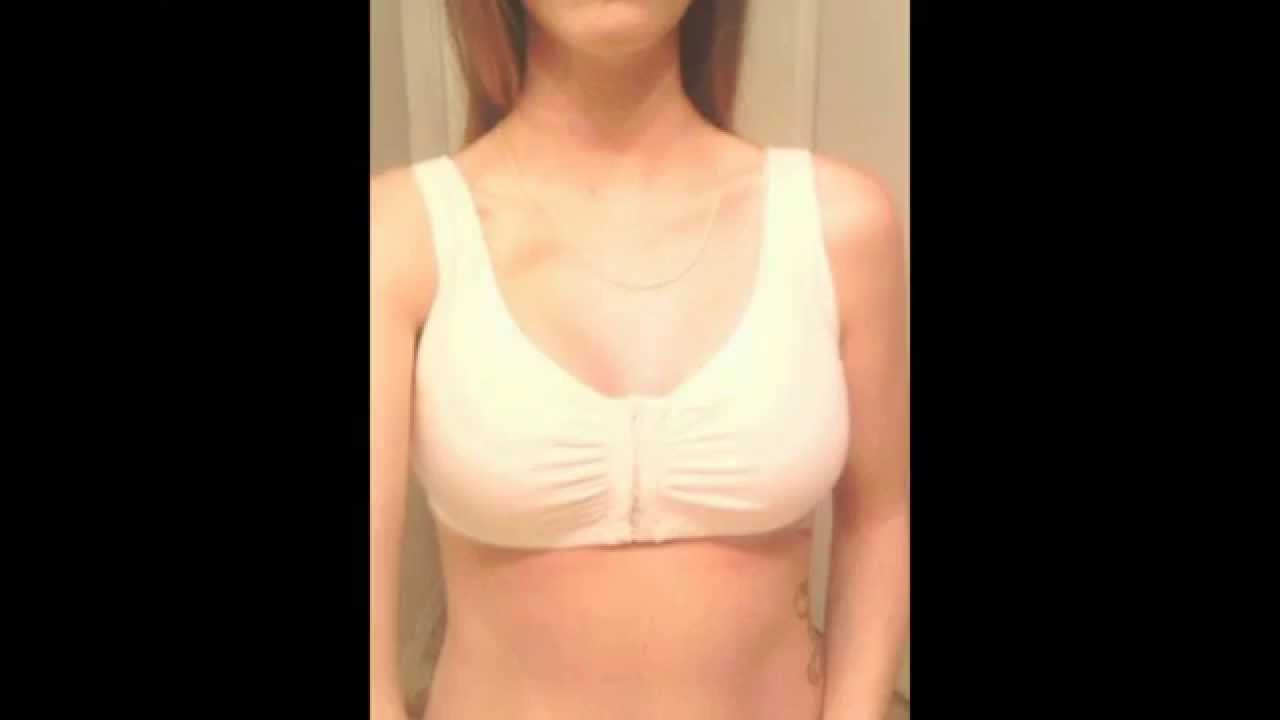 left in breast Sutures augmentation after
