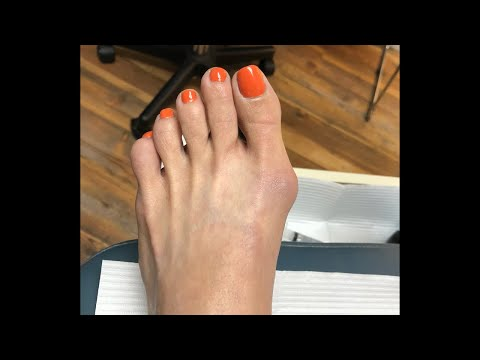 MIS (Minimally Invasive Surgery) - Bunion Shaving.  Tampa Podiatrist Dr. Jairo Cruz