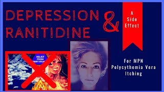 Blood Cancer Polycythemia Vera MPN Itching Symptom Zantac Ranitidine side effect of Depression