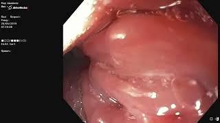 Мелкая рыбная кость в горле