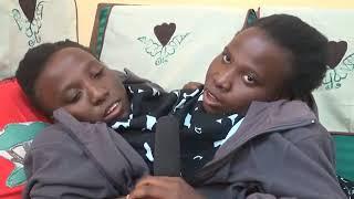 Kauli ya mwisho ya Mapacha walio ungana kabla ya kufariki
