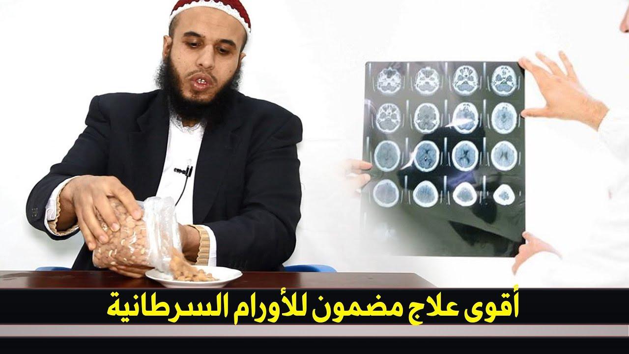 اقوى علاج مضمون للاورام السرطانية وعلاج السرطان بكافة انواعه طبيعيا وبدون دواء !!
