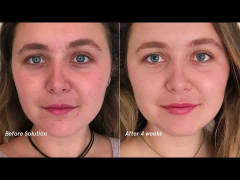 Glossier Solution: Baleigh, Before and After