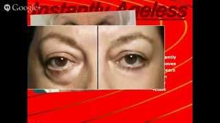 Instantly Ageless - Best Eye Cream? Testimonial in Utah UT USA