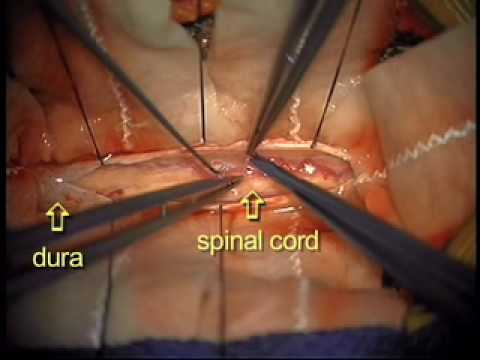 Dr. Ali Bydon Performs A Spinal Cord AV Fistula Repair