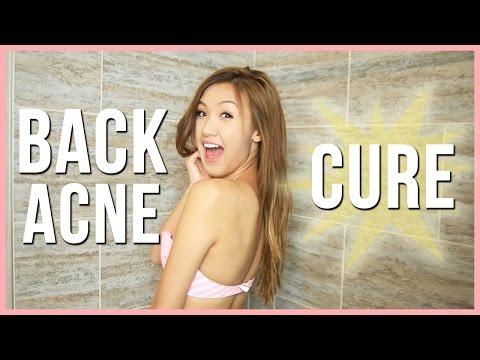 hqdefault - Natures Cure Acne Spray