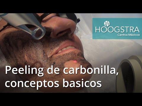 Cómo se realiza un peeling de carbonilla - Conceptos básicos (16029)