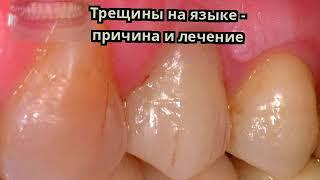 трещины на языке - причина и лечение