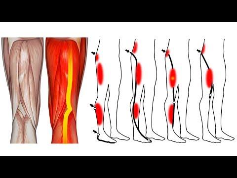 Do joelho dor causa na panturrilha