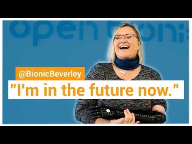 @BionicBeverley receives her Hero Arm!