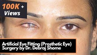 Artificial Eye Fitting (Prosthetic Eye) - Myoconjunctival Enucleation Surgery by Dr.Debraj Shome