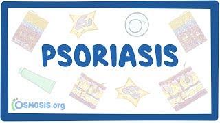 Psoriasis - causes, symptoms, diagnosis, treatment, pathology