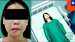Wajah wanita bengkok karena operasi plastik yang gagal