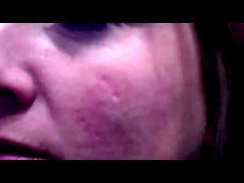 Как убрать морщины под глазами или вокруг глаз – обзор методов