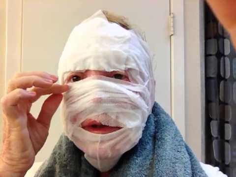CO2 Laser Surgery Day 1 Gauze Bath - YouTube