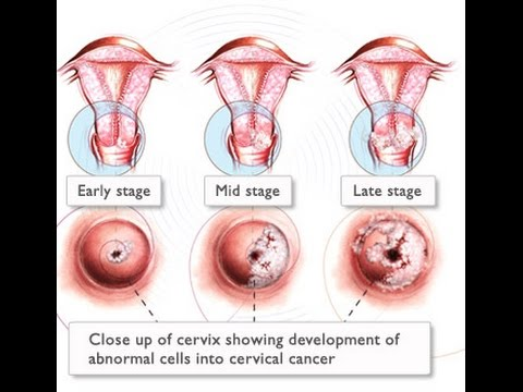 Cervical Cancer Treatment and Awareness