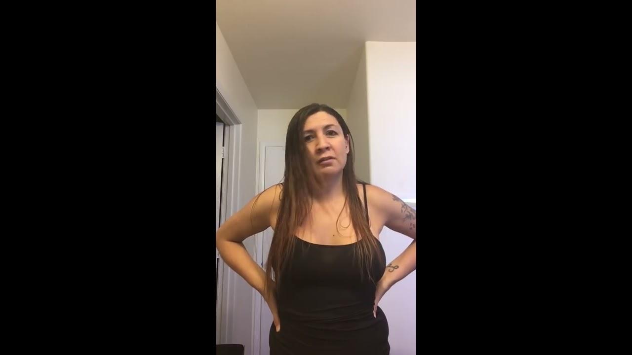 Post Op 3 Weeks- Tummy Tuck  Breast Implants - Youtube-9459