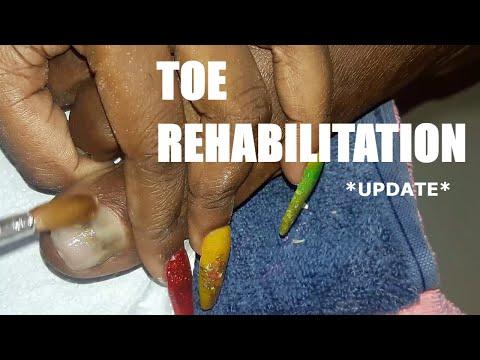 EXTREME NAIL TRANSFORMATION *update*  Nail Tutorial   Acrylic Application thumbnail