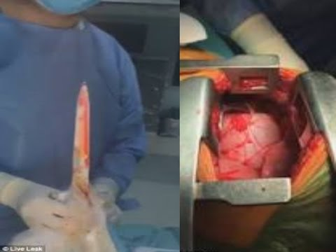 The Moments A Surgeon Removes Medieval Sword From Mans Chest As His Heart Beats Beside It