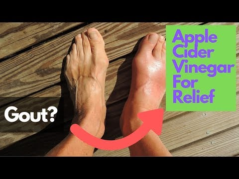 apple-cider-vinegar-for-gout-relief-with-baking-soda-and-lemon