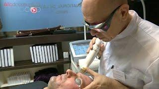 Le traitement des cicatrices au laser - Allô Docteurs
