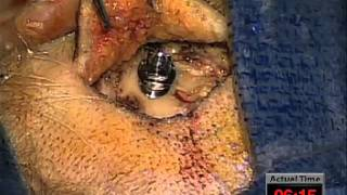 Surgery Cochlear Baha Bp100 Anium Implant Hearing Aid Single