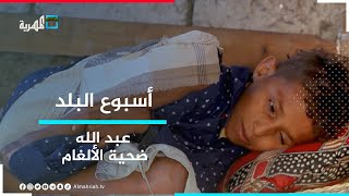 عبد الله.. قصة طفولة معذبة بسبب الألغام