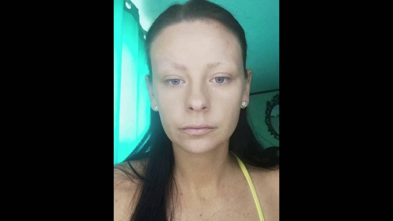 Trichotillomania and Eyebrow Tutorial - YouTube