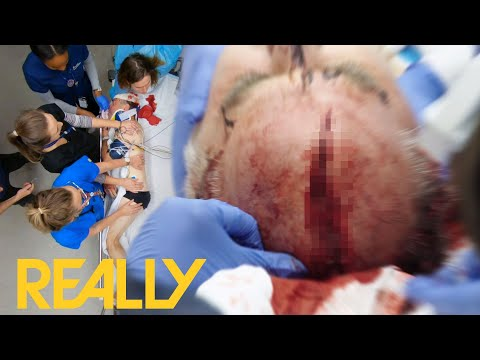 Man Has A Massive Wound In His Head After Accident Involving Chainsaw | Emergency