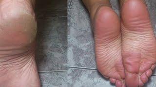 Acabe com rachaduras e aspereza nos pés – Passo a passo – Dicas caseiras
