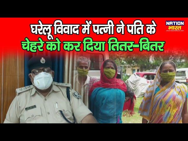 Katihar में घरेलू विवाद में पत्नी ने पति के चेहरे पर डाल दिया chemical, फिर जो हुआ