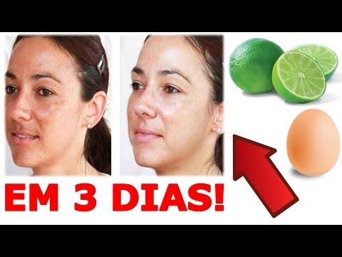 RECEITAS CASEIRAS Para CLAREAR a PELE   Clareamento Em 3 DIAS!!