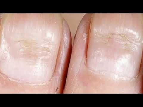 Что ногти расскажут о вашем здоровье Диагноз по ногтям