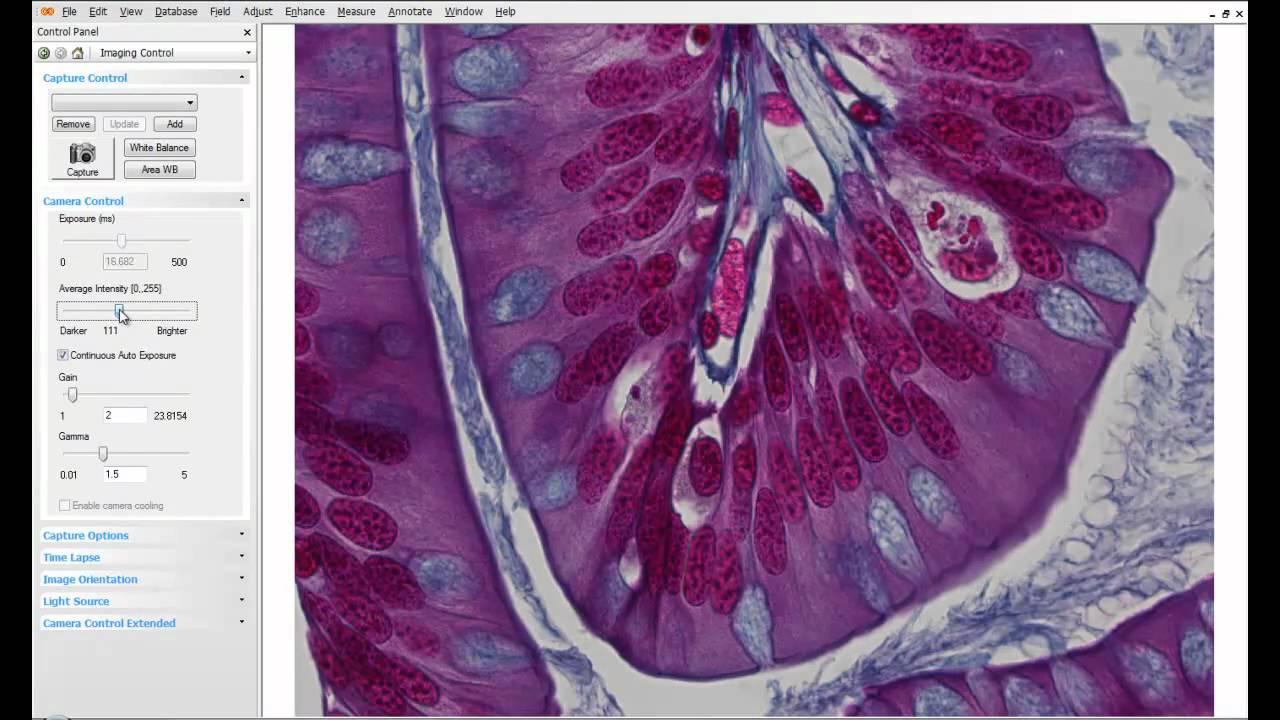 Making Exposure Adjustments on Lumenera INFINITY ANALYZE Imaging