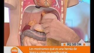 Hernia de Hiato Médicos Mira la Vida