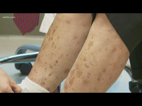 New Psoriasis Treatment Uses Light Therapy, How To Get In On The Study