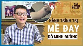 Đỗ Minh Đường điều trị hiệu quả nổi mề đay trong 10 ngày cho bệnh nhân Nguyễn Hùng Long
