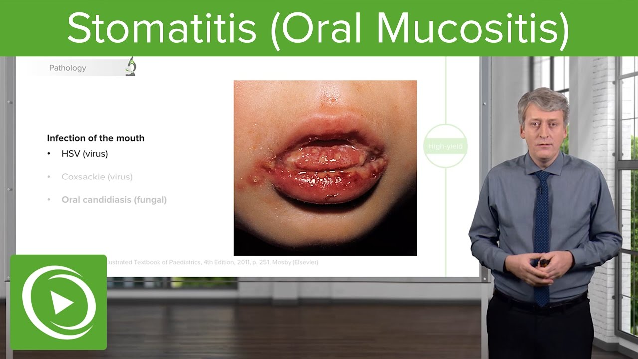 Stomatitis (Oral Mucositis) – Pediatric Infectious Diseases | Lecturio