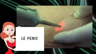 Epilation du sexe de l'homme - la méthode laser