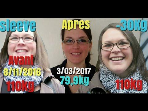 Sleeve 4 mois post OP -30 kg Impressionnante perte de