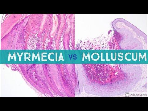 Molluscum vs Myrmecia Wart - Dermpath Lookalikes