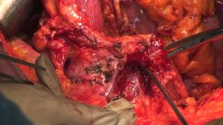 Whipple procedure with pancreatic body and tail resectoion