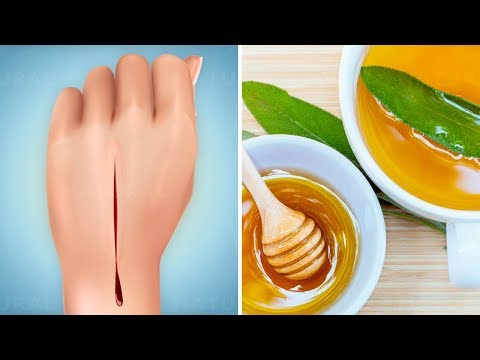 How to Heal Cuts and Wounds Faster