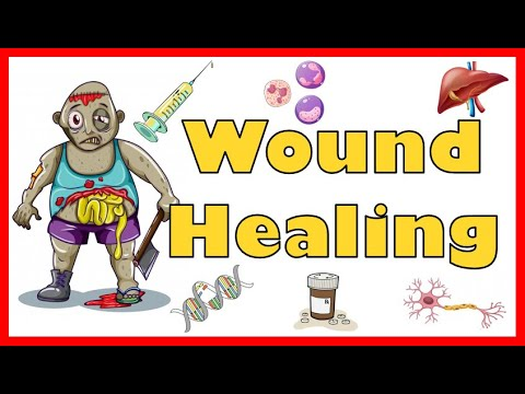 Wound Healing: Mechanism, Types, Primary, Secondary & Tertiary intention of healing & Complications