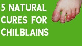 5 Natural Cures For Chilblains |  Chilblains Cream | Chilblains Toes