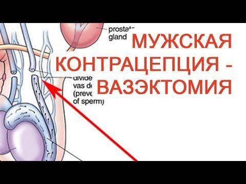 Мужская контрацепция – Вазэктомия / Доктор Черепанов