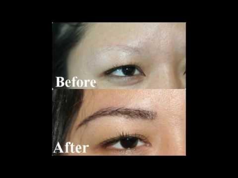 Eyebrow Transplant for Women Manila Philippines by Manzanares Hair Restoration Center