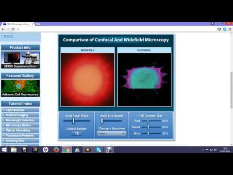 confocal vs widefield : difference in image quality