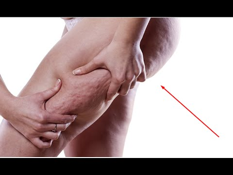 How To Get Rid Of Cellulite Lose Cellulite Now Page 182