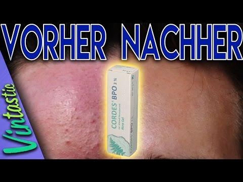 AKNE-FREI SEIT 4 JAHREN ● BPO Methode ● Pickel loswerden/Akne bekämpfen